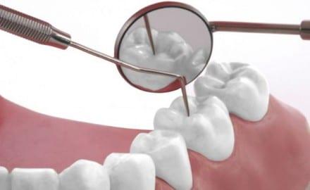 zubi pregled