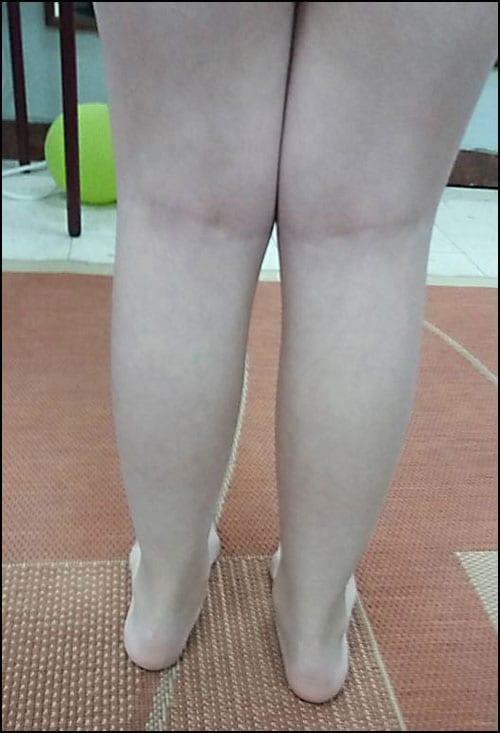 deformitet-1