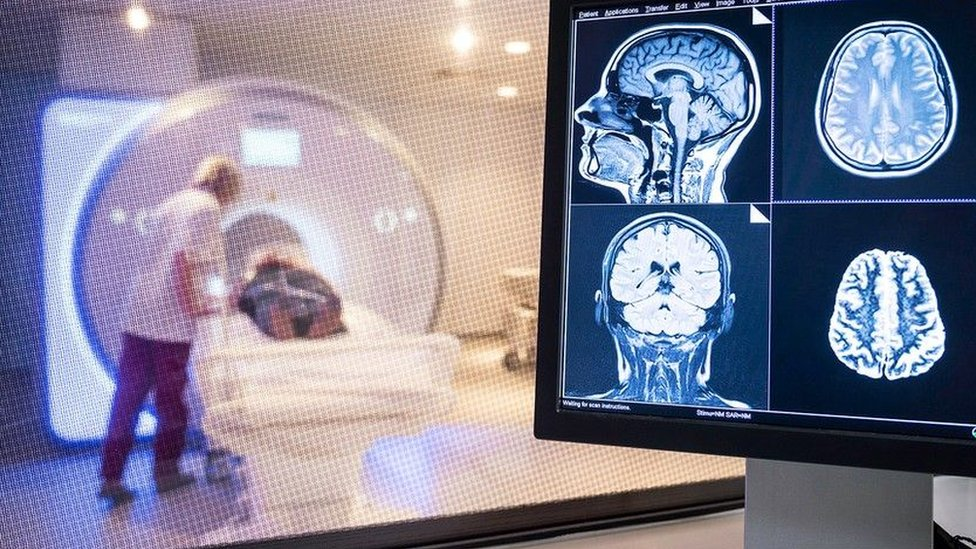 A patient undergoes a brain scan at the hospital