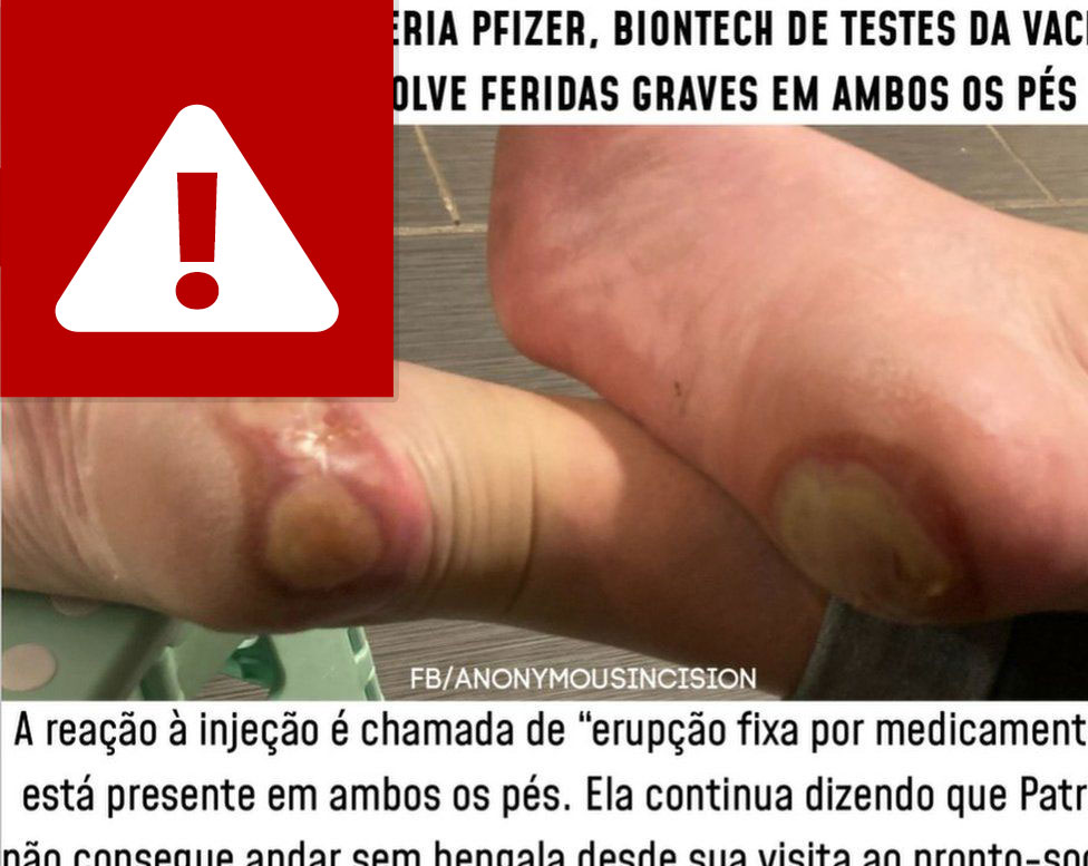 Post in Portuguese about feet